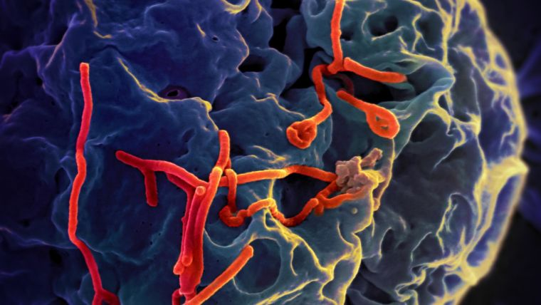 New approach to tackle ebola and other deadly infections
