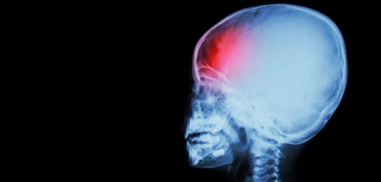 Child head x-ray