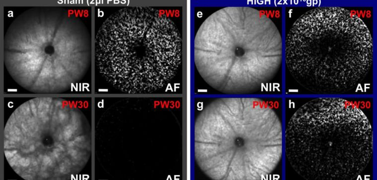 Prevention of retinal degeneration using CNTF gene therapy applied to one eye of a mouse model of retinitis pigmentosa, which also has fluorescent cones that can be counted. At 8 weeks (PW8) both eyes appear similar, but by 30 weeks retinal pigment changes can be seen in the sham injected eye (c) as the degeneration progresses with all cones lost (d). In contrast, the CNTF treated eye (g, h) has a virtually unchanged fundal appearance and over 50% of cones surviving