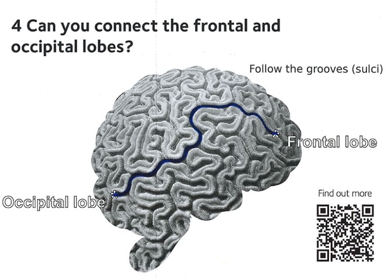 Image showing the grooves 'sulci' in the brain, and identifying the names of the different areas.