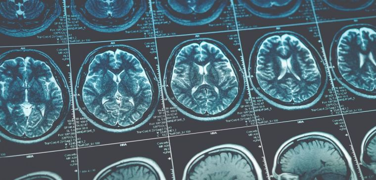Oxford spinout company launched to diagnose alzheimer2019s disease from mri scans