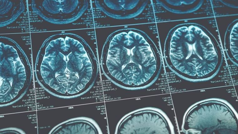 Oxford spinout company launched to diagnose alzheimers disease from mri scans