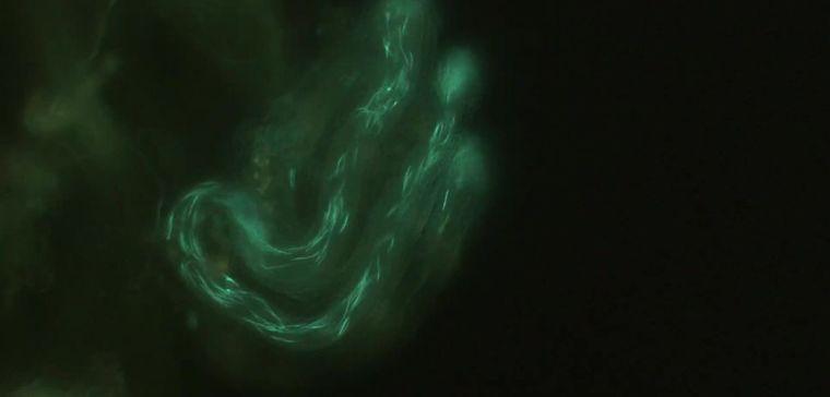 Glowy sperm.jpg