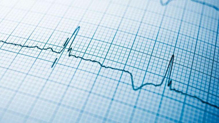 Ai technology can predict heart attacks
