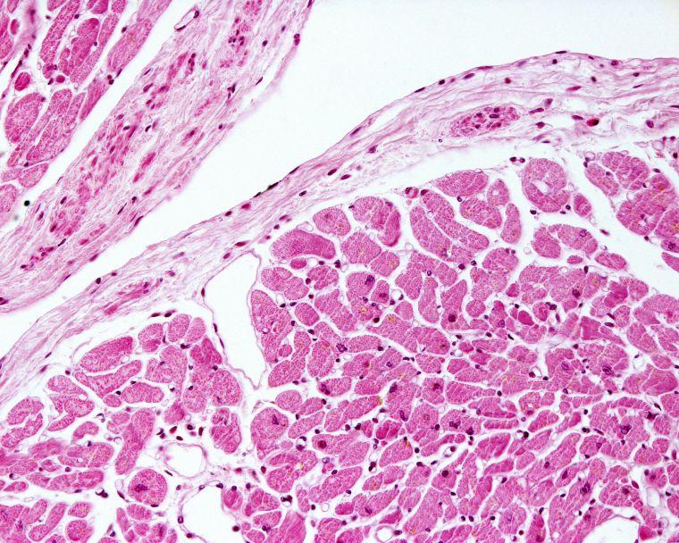 Heart tissue 1