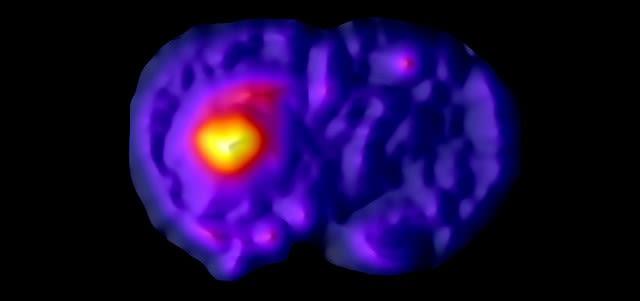 Experimental neuropathology