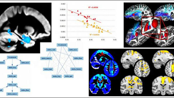 Our work focuses on translating imaging analysis methods to better understand processes such as brain maturation and ageing, and with a particular emphasis on neurodegenerative disorders (Alzheimer's, Parkinson's, Huntington's, ALS) and Big Data (UK Biobank, Lifespan HCP).
