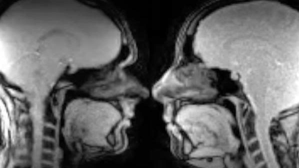 MRI brain scans of two people