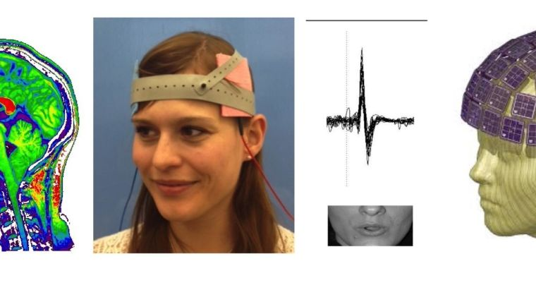 New funding from the MRC to study stuttering