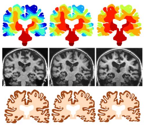 Mechanistic model of alzheimers