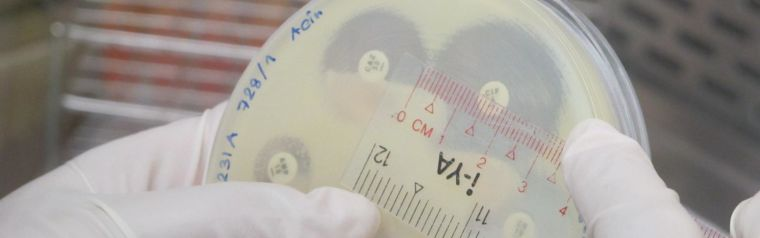 Scientist measuring size of a bacteria colony in a petri dish