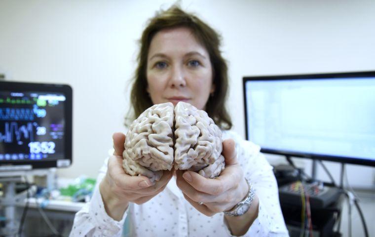 Rebeccah with brain