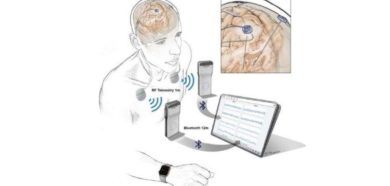 Illustration of new generation of neurostimulation devices