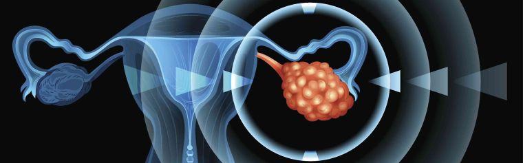 Digital render ovarian cancer