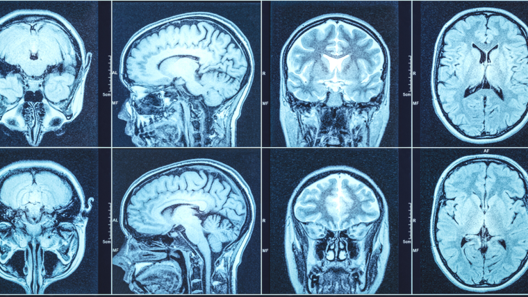 A variety of brain MRI scans from different angles on a screen