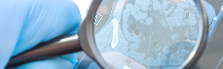 Someone looking at a CT scan image using a magnifying glass