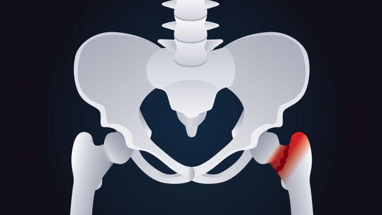 Illustration of a hip fracture