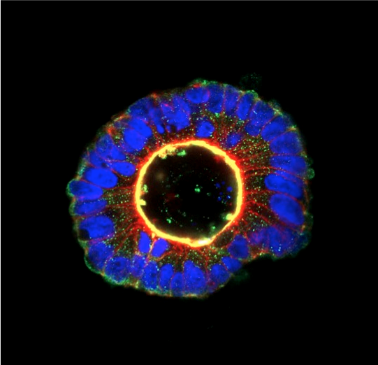 Cancer cells grown in 3D can sometimes still form highly organised structures. The central yellow ring of staining identifies the inner luminal surface of this polarised colony of colorectal cancer cells.