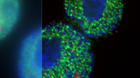RNA polymerase II phosphorylated at serine 5 (3E8 antibody; red) and serine 2 (H5 antibody; green) in lymphoblastoid cell nuclei (DAPI; blue). Imaged in a DeltaVision Elite by Dr Jill Brown and Prof Veronica Buckle (MRC MHU, MRC WIMM)