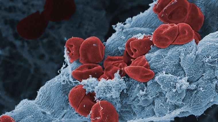 Ruptered blood vessel