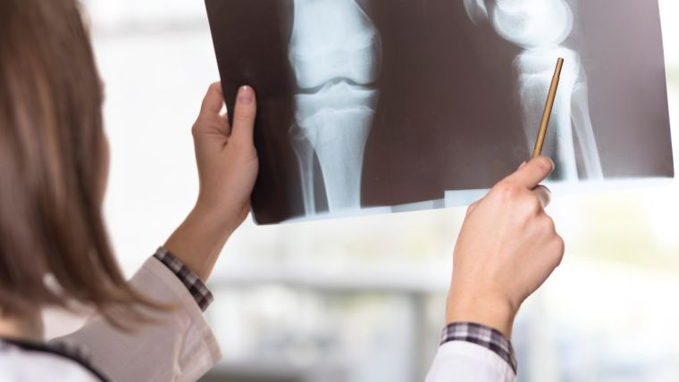 Further research into the relationship between brittle bones and women's heart disease risk could be beneficial suggest Drs Dexter Canoy and Kazem Rahimi at the Nuffield Dept of Women's & Reproductive Health.
