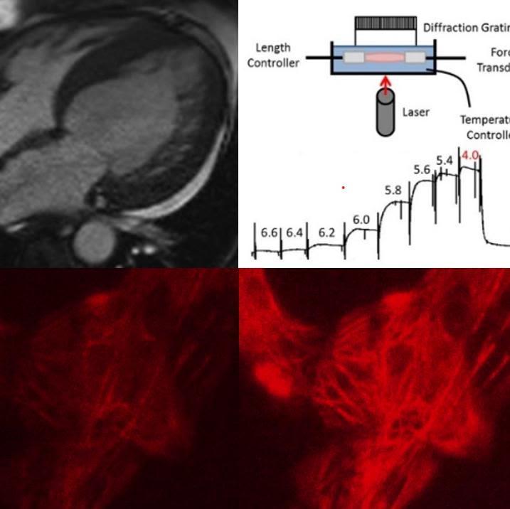 Using human genetics and functional genomics to understand inherited heart disease