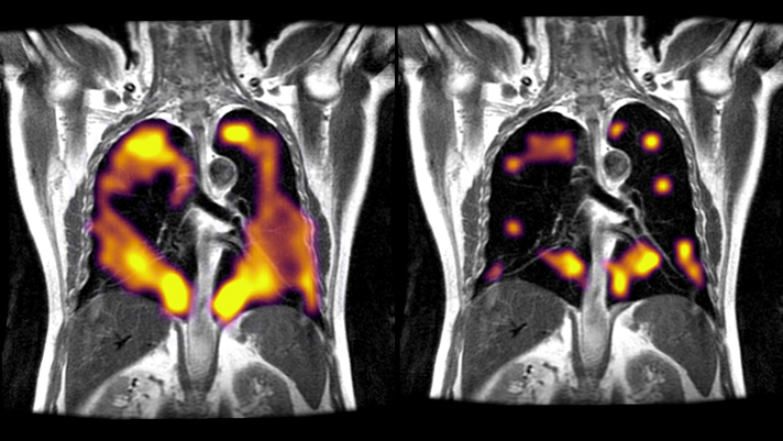 Scans showing lung damage