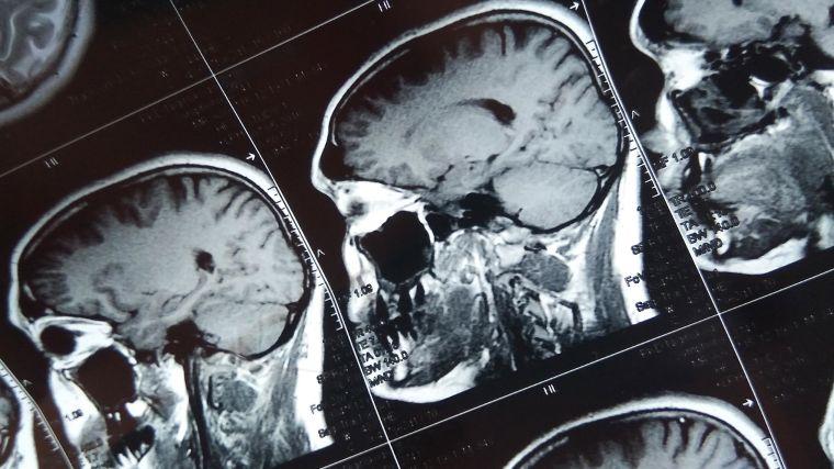 Image showing an MRI scan