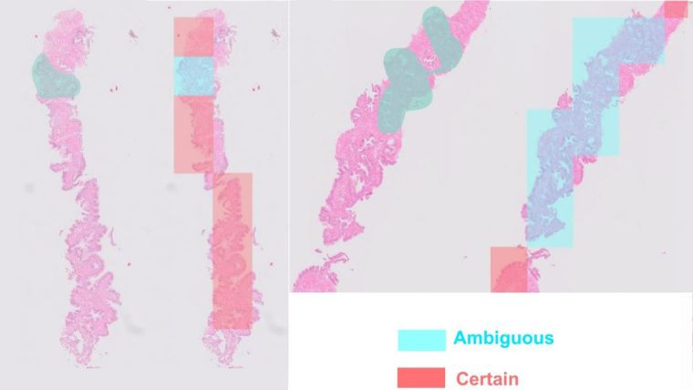 Prostate biopsy slides annotated by the AI tool with regions shaded in red (certain) or blue (ambiguous).