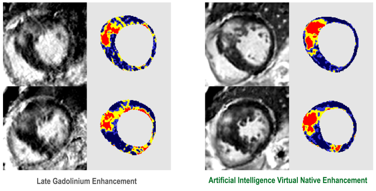 Magnetic resonance images of the heart showing a comparison between standard gadolinium enhanced versus the new AI-enhanced images.