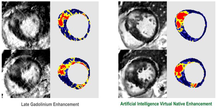 Qiang Zhang Enhancement Research Image.png