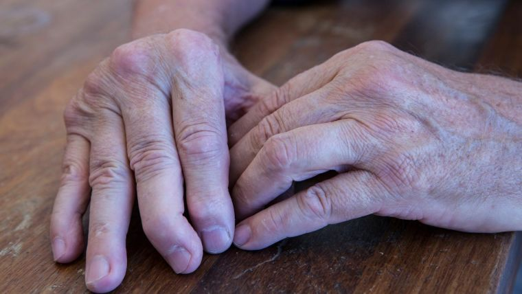 Hands of a person with psoriatic arthritis