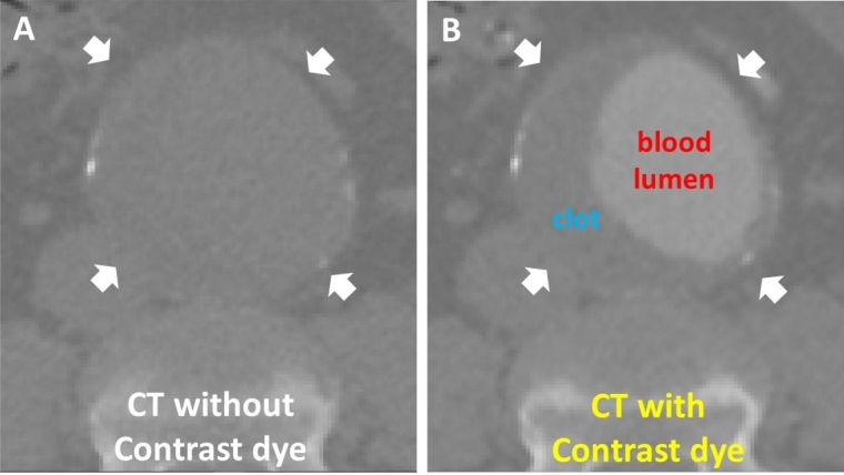 CT without contrast dye (Figure A) and CT with contrast dye (Figure B)
