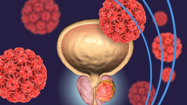 Prostate Cancer Image