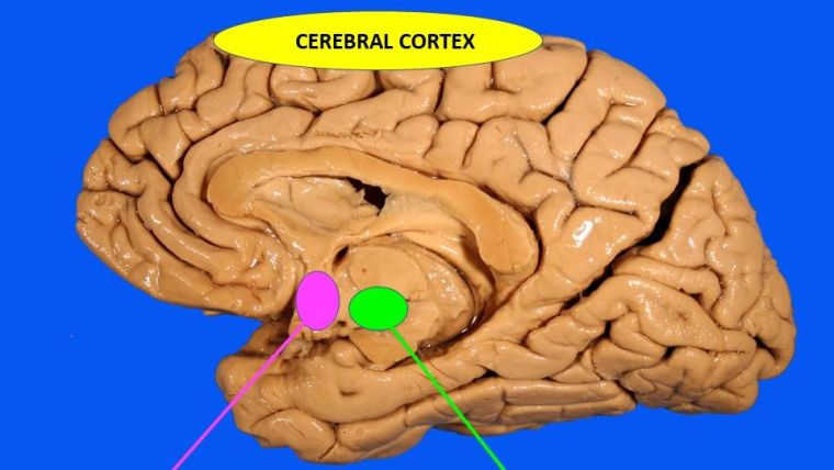 The cerebral cortex is shown at the top of the brain with the anterior hypothalamus and junction of forebrain and brainstem positioned below at the lower part of the brain.