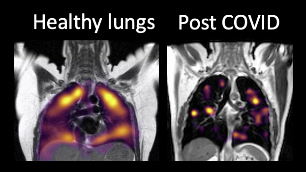 The healthy lungs appear to have more gas activity present than the post Covid scan which shows more dark areas indicating damage.