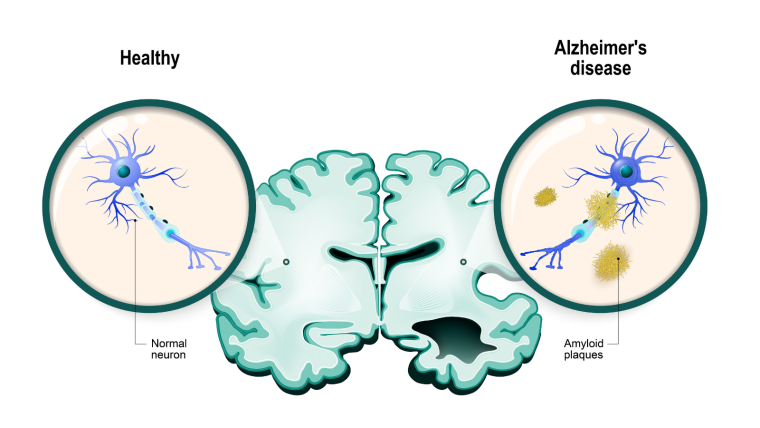 Diagram of a brain with a magnified neuron. The left side of the brain and left neuron are healthy, whereas the brain on the left has bits missing and the neuron is surrounded by clumps of amyloid.