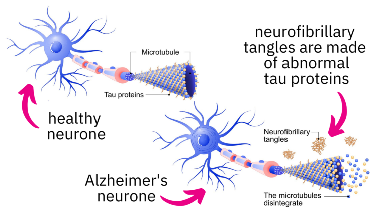 A graphic of a healthy neuron and a neuron damaged by abnormal tau proteins.