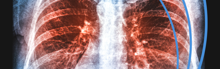 Lung XRay with a red highlight around a tumour