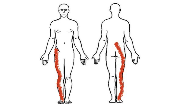 Example of two pain drawings of patients with sciatica. The first patient has pain going from the groin area to the foot. The second patient has pain going from the lower back to the foot. The distribution of pain can vary substantially between patients.