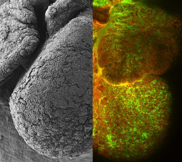 This image shows the developing heart of a mouse embryo captured using an electron microscope (left) and a laser microscope (right). In the black and white image we can see how cells in a developing heart don't form a smooth surface. To capture the image on the right cells were stained with two coloured markers - red, to visualise nuclei, and green, to highlight cell boundaries. These red and green cell boundaries show how some cells huddle together in small structures and form strong connections with their neighbours. Other cells end up alone and will dive into the heart to find stronger connections as it continues to develop.