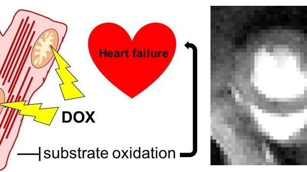 Chemotherapy can cause heart failure in cancer survivors. We are interested in the mechanism of chemotherapy-induced cardiotoxicity, specifically the role of mitochondrial metabolism in the pathophysiology of ensuing heart failure.