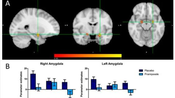 Image of 3 brains scans and 2 graphs