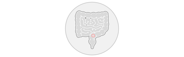 Colorectal cancer icon
