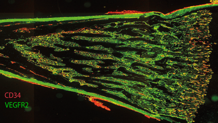 A longitudinal section of fetal femur with multiplex immunofluorescent staining, showing CD34 in red and VEGFR2 in green.