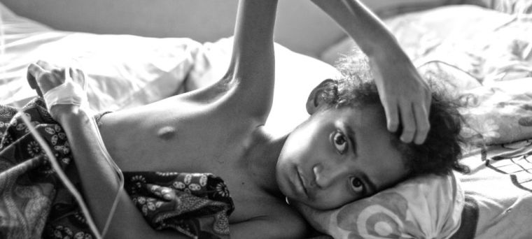 Young girl suffering from vivax malaria lying on a bed