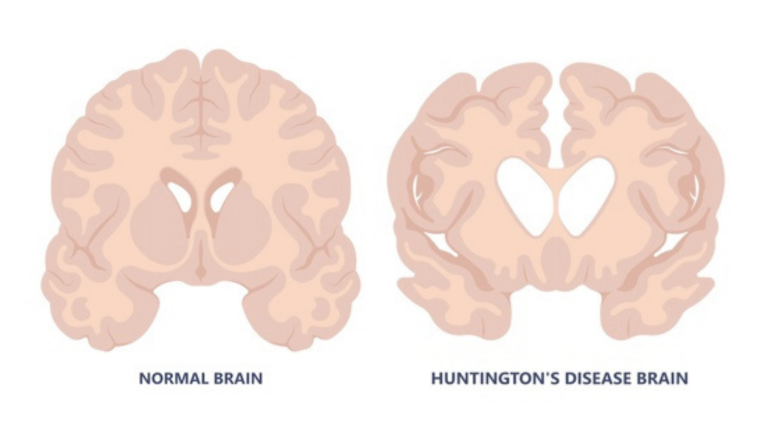 A graphic displaying a brain with and without Huntington's disease.