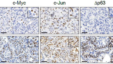 USP28 is required in the survival of LSCCs.