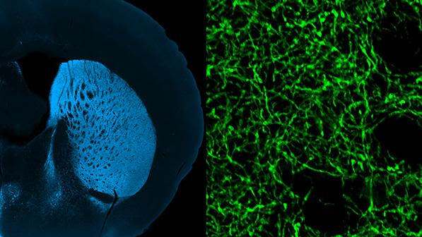 Dopamine axons in the mouse brain