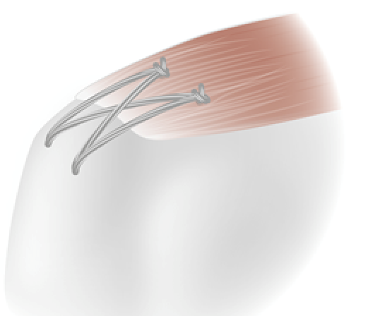"""Bioactive Nanofibrous Sutures to Enhance Repair of Rotator Cuff Repairs - The Bioyarn Trial"""